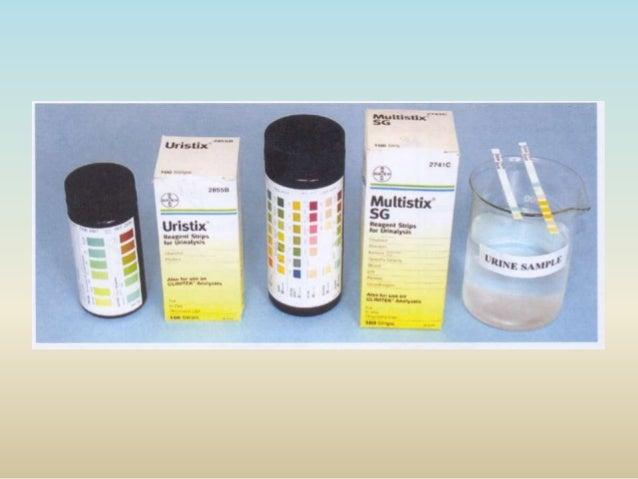 urine ketone test manual procedure